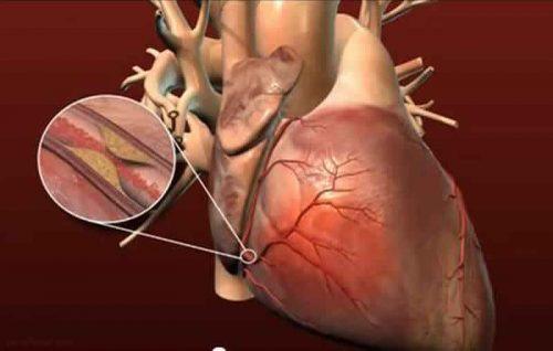 پیشگیری از بیماری های قلبی