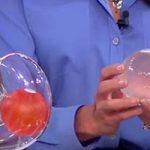 بالون معده برای لاغری روشی ساده برای کاهش وزن