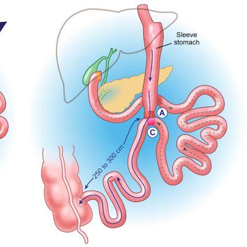 بای پس روده موثرترین روش جراحی کاهش وزن
