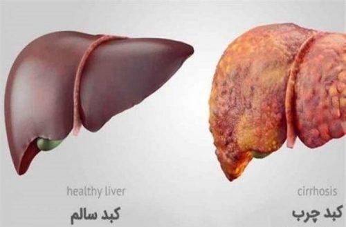 علل ابتلا به بیماری کبد چرب