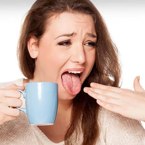 سوختگی زبان و دهان و درمان های خانگی
