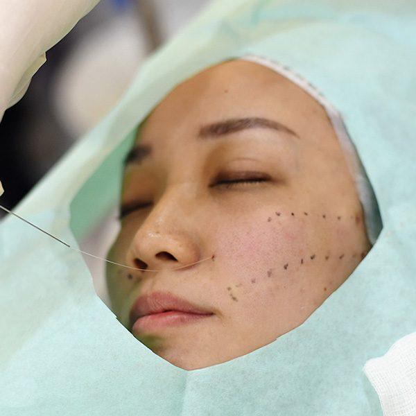 لیفت با نخ جدید ترین روش برای جوانسازی پوست + مزایا و معایب