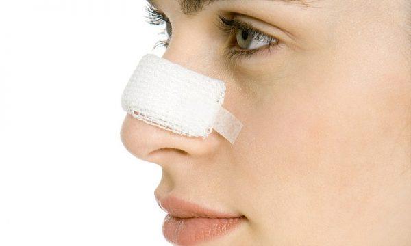 علل افتادگی بینی بعد از جراحی زیبایی