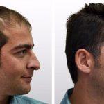 دانستنی های بسیار مفید در مورد جراحی کاشت مو
