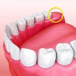 هر آنچه باید درباره دندان عقل و کشیدن دندان عقل بدانید