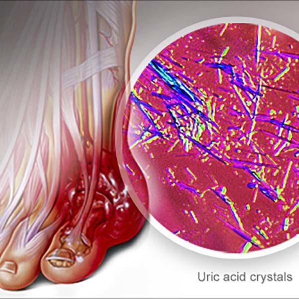 روش های طبیعی برای کاهش اسید اوریک