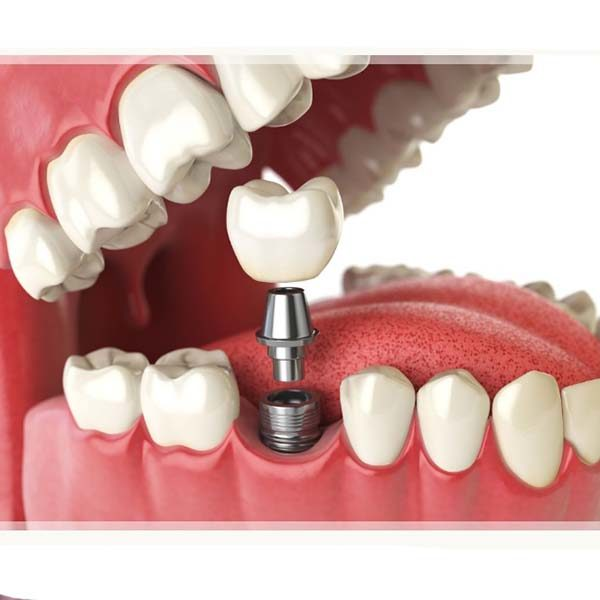 ایمپلنت دندان چیست و مراقبت های لازم پس از عمل