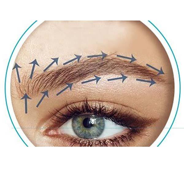 کاشت ابروی طبیعی و راهنمای جراحی با موهای طبیعی به صورت دائمی