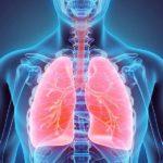 التهاب ریه یا پلوریسی ، اشتباه درد قفسه سینه با درد قلب