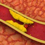 چگونه تری گلیسرید خون را کاهش دهیم ؟
