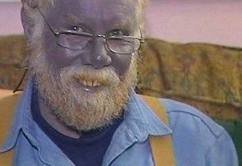 گزارش تصوری:مردی با پوست آبی