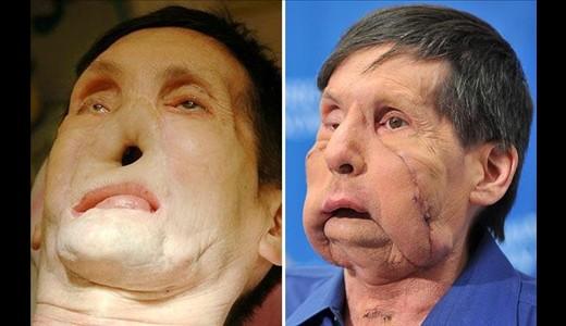 عکس های دیدنی و عجیب پزشکی