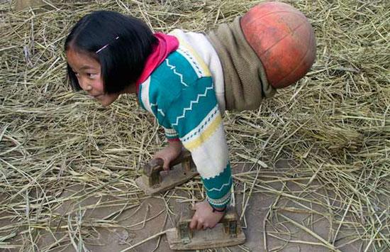 عکس های دیدنی:کودکان عجیب در دنیا