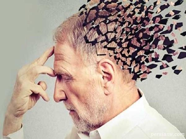 تست آلزایمر