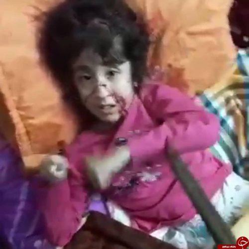 شکنجه دختر