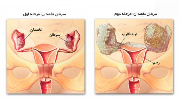 سن شایع سرطان تخمدان