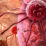 سرطان تخمدان و رابطه آن با جهش ژنتیکی