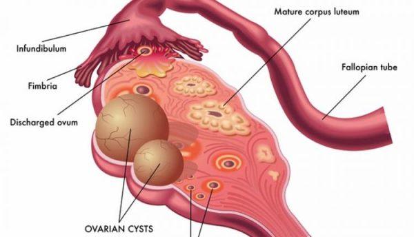 علت تشکیل کیست تخمدان چیست