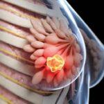 مطالبی در رابطه با سینه های زنان