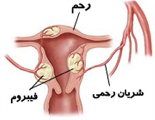 آمبولیزاسیون برای درمان فیبروم رحمی