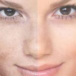چرا پوستم دو رنگ شده است؟
