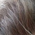 علت سفید شدن موها و راههای درمان آن