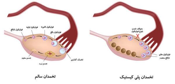 علل و نشانه های نارسایی تخمدان