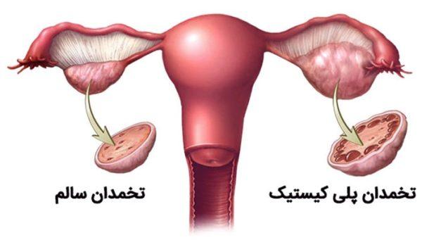 خانم های مبتلا به تخمدان پلی کیستیک بخوانند