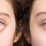درمان تضمینی پف شدید زیر چشم