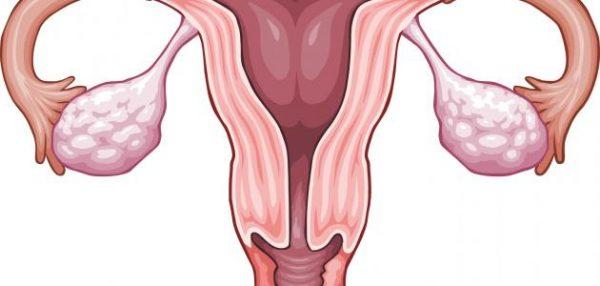 چهار گیاه دارویی مفید برای درمان تخمدان پلی کیستیک