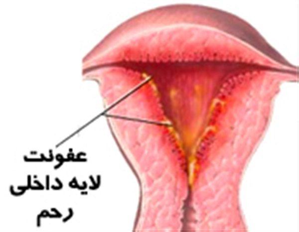 خانمها با رعایت این نکات می توانند عفونتهای رحمی را دور بزنند