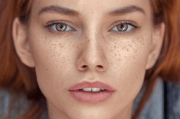 چگونه از شر کک و مک های صورتمان راحت شویم؟