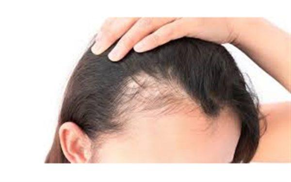 مواد طبیعی ضد ریزش مو