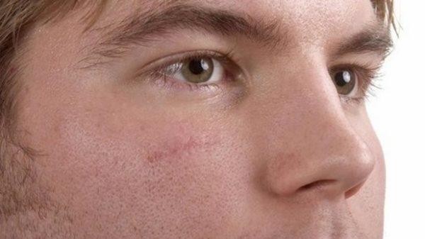 چگونه جای زخم روی پوست را زود محو کنیم؟