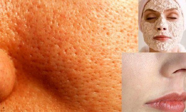 نحوه آرایش خانمهایی که منافذ پوستی باز دارند اینگونه باید باشد