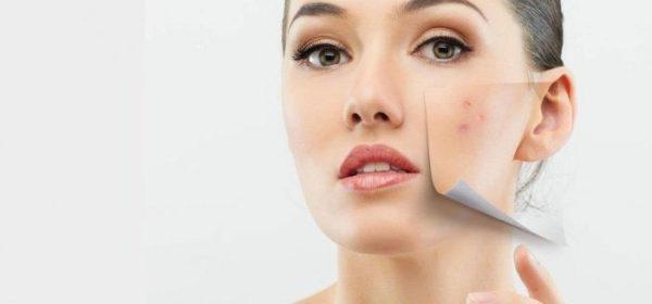 راه های طبیعی درمان جوش صورت