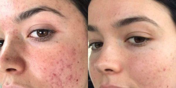 انواع جوش صورت را با کمک این روشهای طبیعی از میان بردارید