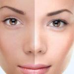 روشن کردن پوست صورت و نکاتی طلایی درباره آن که باید بدانید