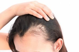 ریزش موی زنان به این دلایل عمده است