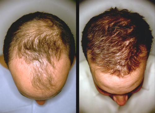 برای داشتن موهای پرپشت و جلوگیری از ریزش آن از رزماری غافل نشوید