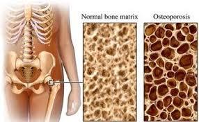 پوکی استخوان را در زنان باید جدی تر گرفت