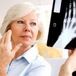 یائسگی علائم آرتریت روماتوئید را تشدید میکند