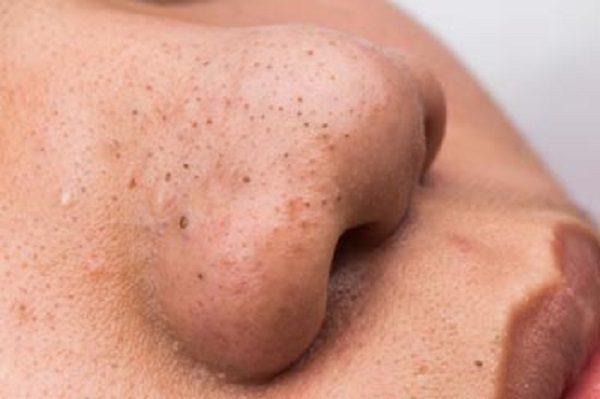 دانه های سیاهی که روی بینی به وجود می آید