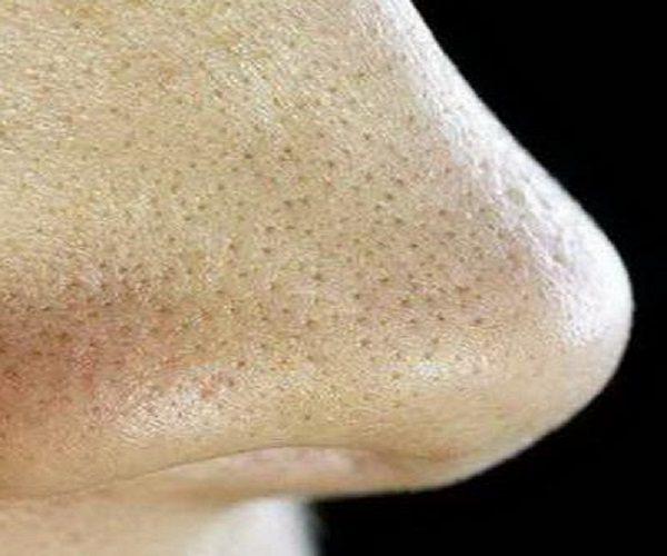 دانه های سیاه روی بینی