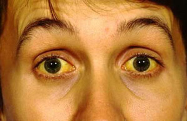 راه های درمان زردی چهره