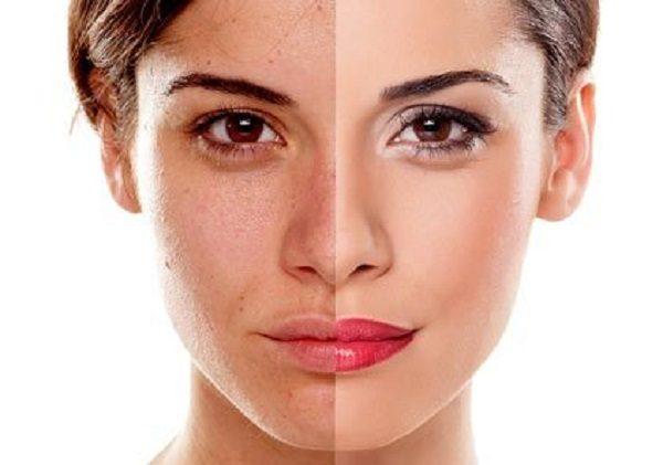 چطور عیبهای صورت را با «آرایش» محو کنید