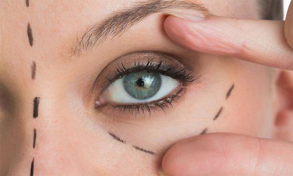 اصلاح افتادگی پلک با آرایش صحیح + عکس قبل و بعد