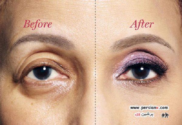 اصلاح افتادگی پلک با آرایش