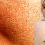 انواع روش های بستن منافذ باز پوست ! مخصوص پوست پرتغالی ها