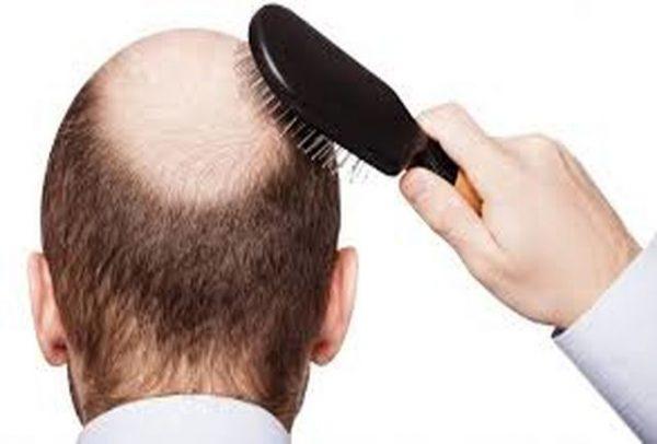 ریزش موهای تان را با دمنوش سبوس برنج درمان کنید